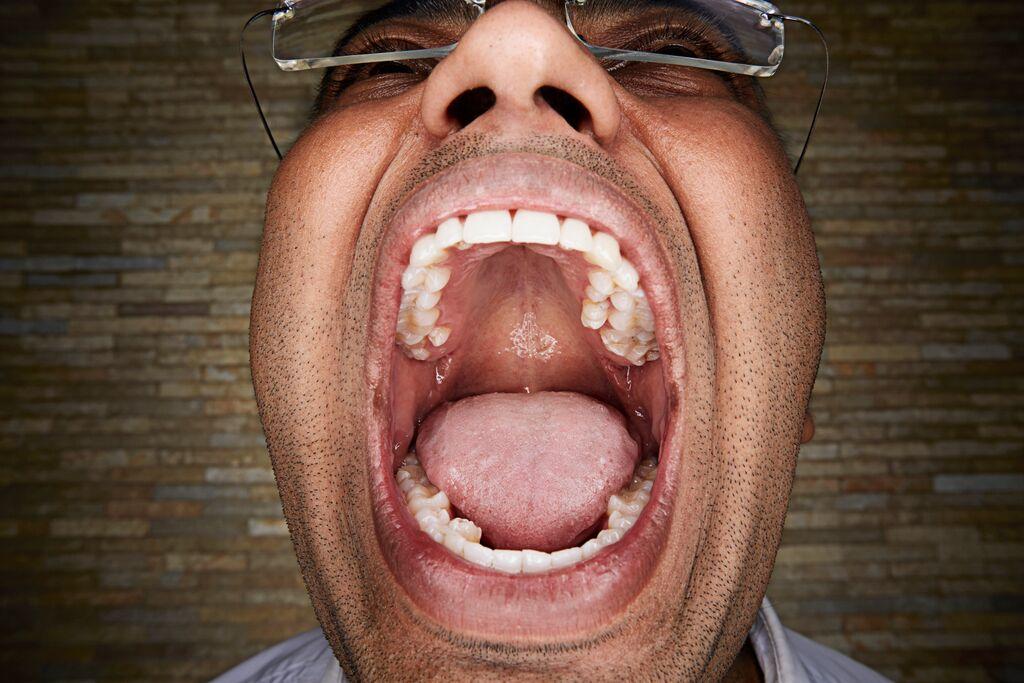 meeste tanden