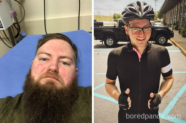 before-after-sobriety-photos-63